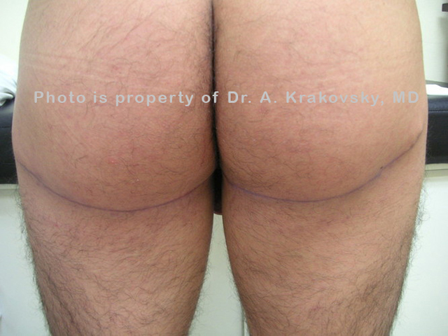 Buttock picture 6 weeks after surgery